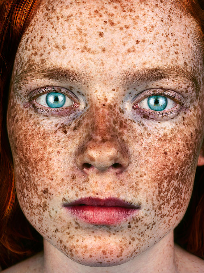 Photographer Captures People With Freckles To Celebrate Their Unique Beauty