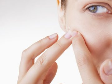 Pimple Worries? Here Are Simple Ways To Pop Them Without A Scar!