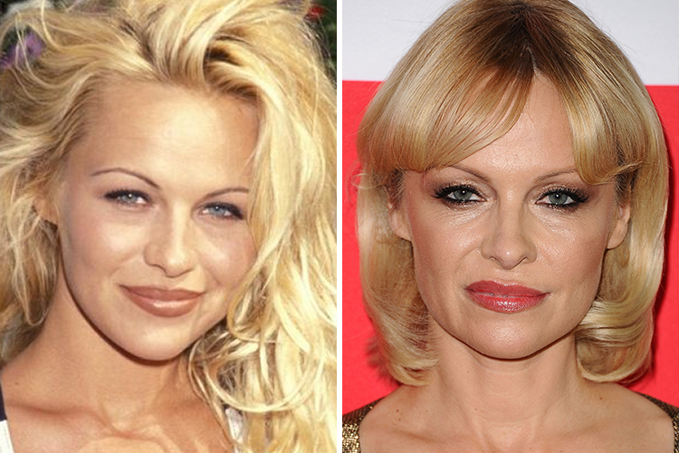Celebrity Plastic Surgeries