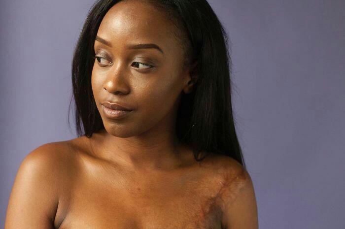 People Shows Their Scars In Powerful Photo Series And Reveals The Story Behind Them