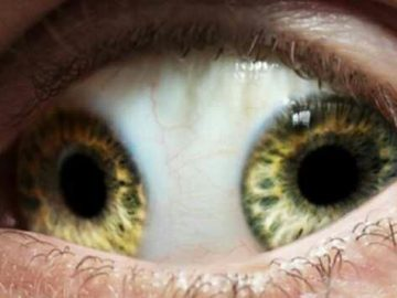 12 Rare Medical Conditions You Never Heard Of