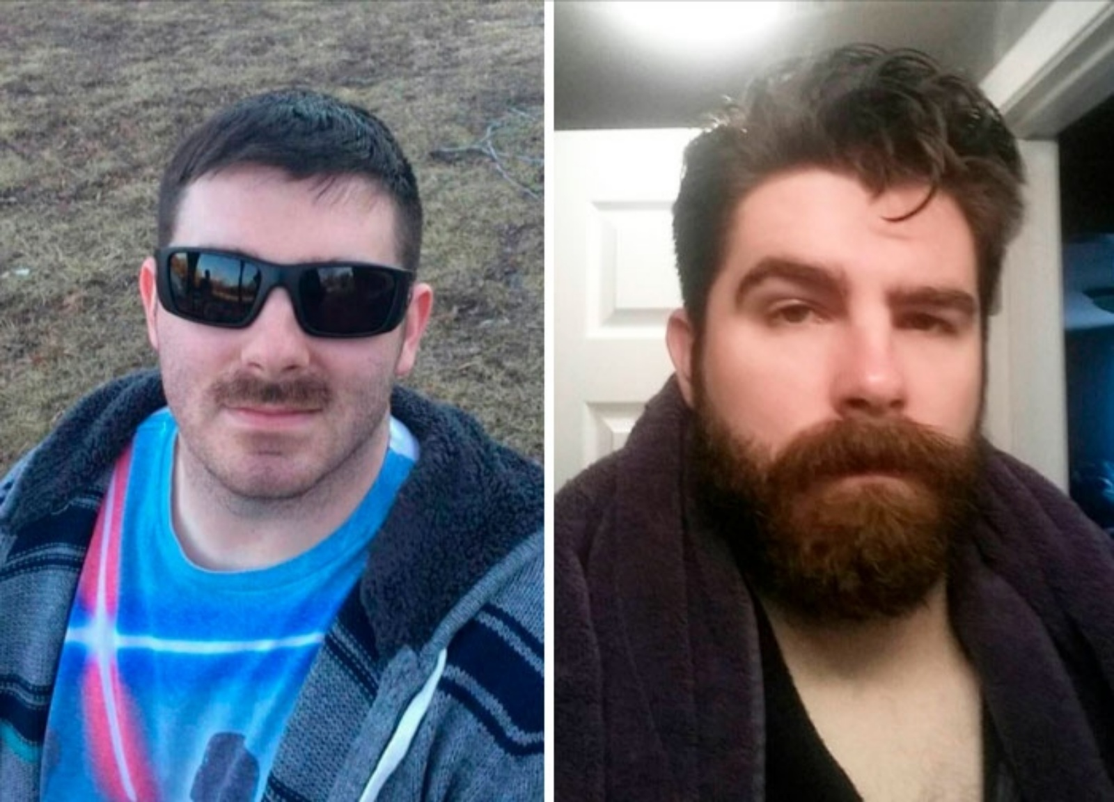 think twice before shaving beard