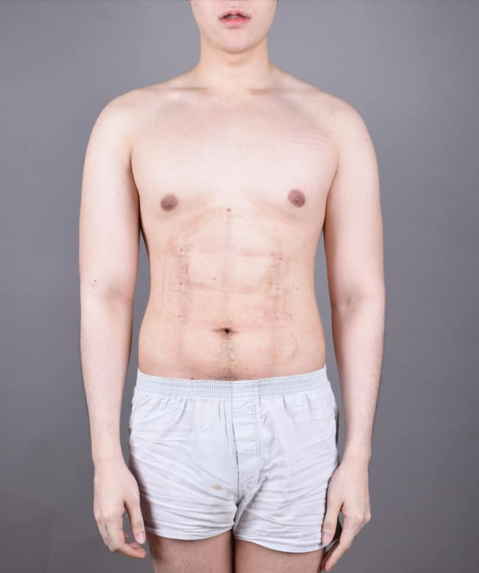 Cosmetic Clinic Bangok Surgery 8-pack